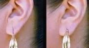 earlobe stitching